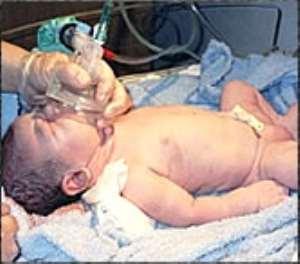 Progesterone treatment cuts preterm birth risk in certain women