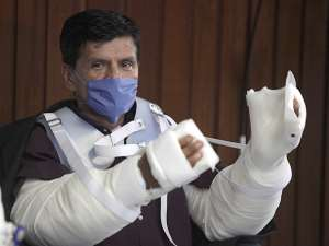 The Mexican, Granados with 2 Transplanted Arms