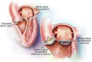 Heart Valve Replacement