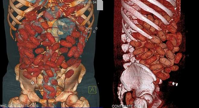 Handout medical image released by the Brazilian Federal Police showing bags with cocaine inside the gastrointestinal tract of a 20-year-old Irish national arrested by police at Congonhas airport in Sao Paulo, Brazil, on September 12. The man, identified only as P.B.B., was stopped whilst trying to board a flight outbound for Brussels with 72 bags containing almost a kilogram of the drug inside his intestines.