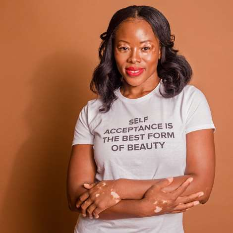 Eva  Khyne Sam, a make up artist and Vitiligo model who was diagnosed with the skin condition in her early 20's. Eva was featured on the 'Portrait Of Britain' campaign by the British Journal of Photography which saw her images published at train stations, bus stops & Billboards across the city.