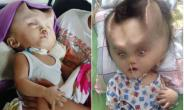 Baby Left With Devil Horns After Surgery