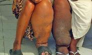 Two female elephantiasis patients in Africa