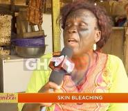 I Went Blind For Bleaching My Skin - Woman Shares Scary Consequences Of Bleaching