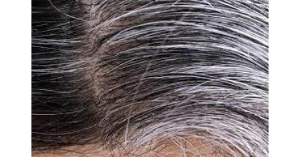Scientists Discover 'Why Stress Turns Hair White'