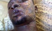 THE ACID VICTIM RETURNS TO GHANA