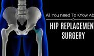 All You Need To Know About Total Hip Replacement.