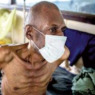 GJA Raises TB Awareness On World TB Day