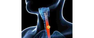 The dangerous effect of oesophagus cancer