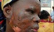A victim of toxic waste dump in Abidjan, Ivory Coast, West Africa