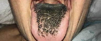 Woman's Tongue Suddenly Grows Hairy After She Was Involved In A Crash